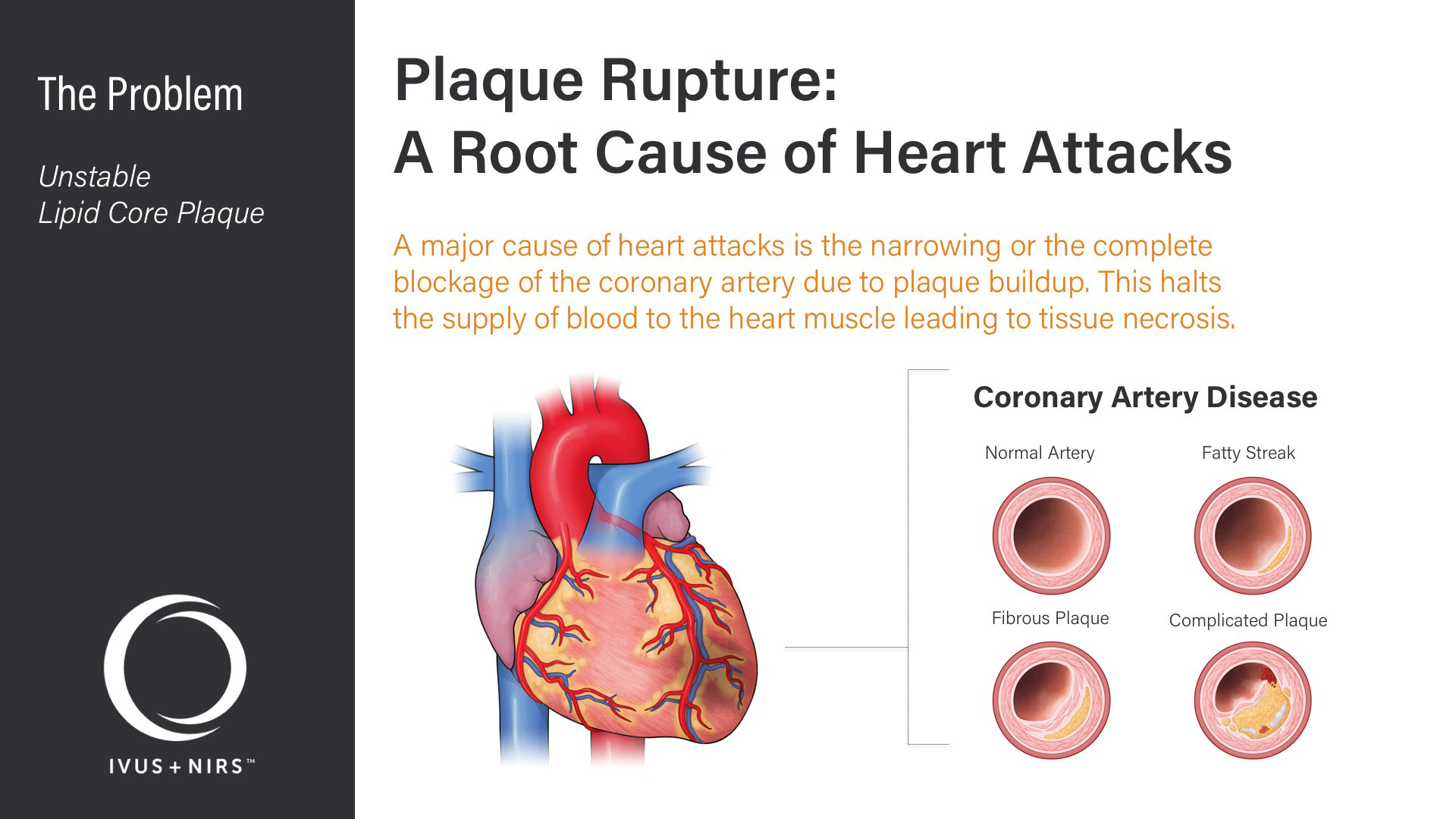 Infraredx Corporate Deck - Problem - Plaque Rupture: A Root Cause of Heart Attacks - Medical Illustrations of Heart & Coronary Artery Disease